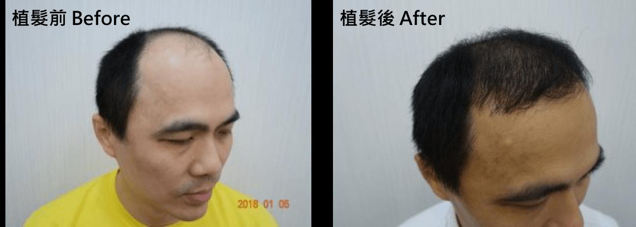 植髮經驗心得分享