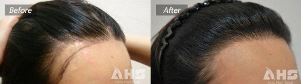 女性髮際線案例