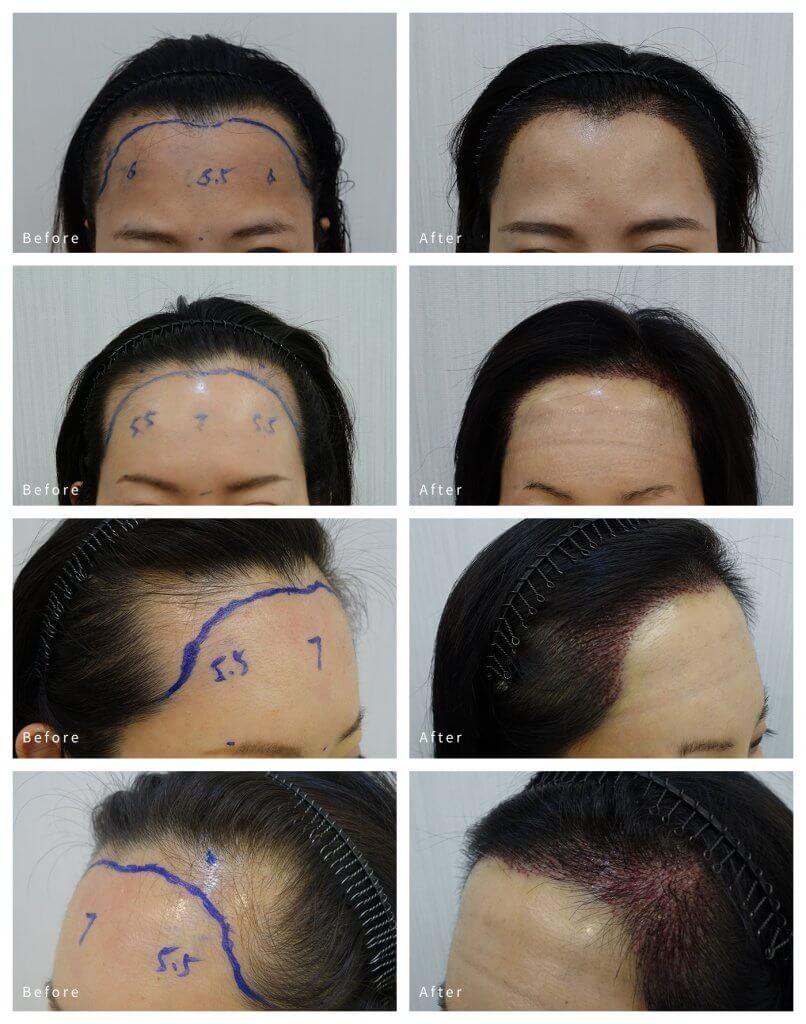 女髮際線對比圖