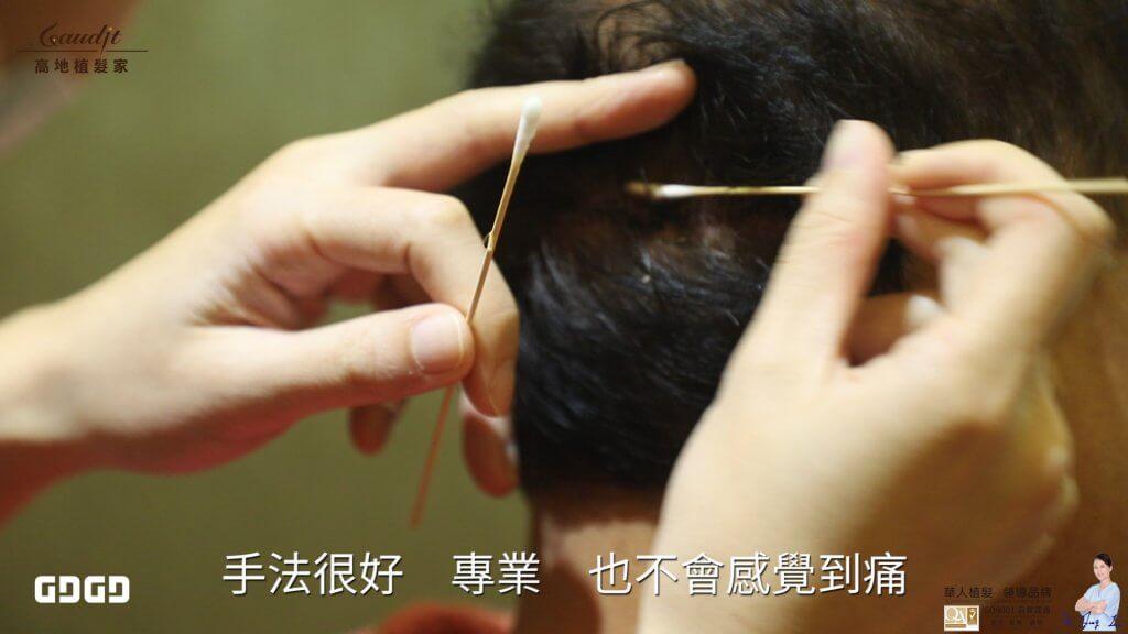 巨量植髮案例