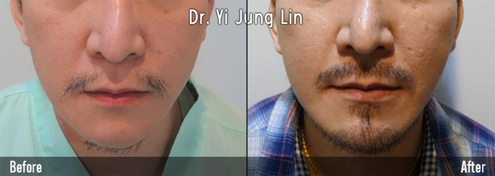 植鬍鬚案例