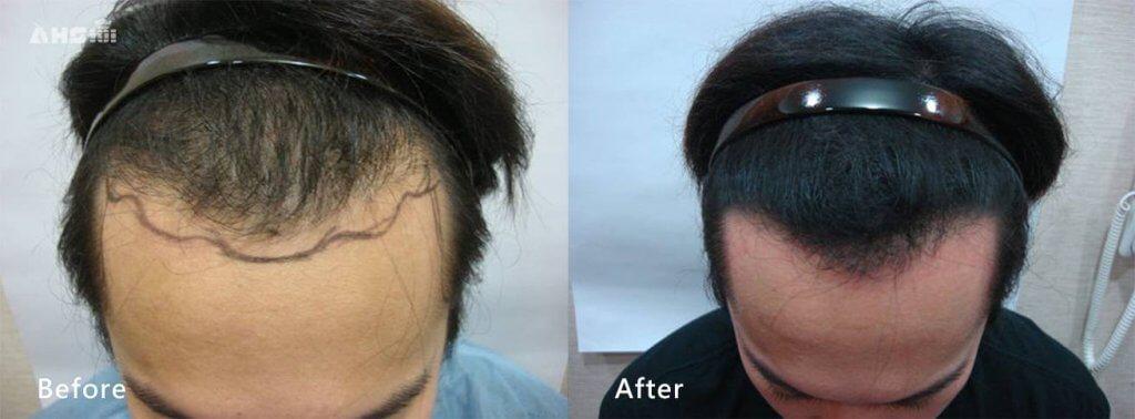 男性髮際線成功案例