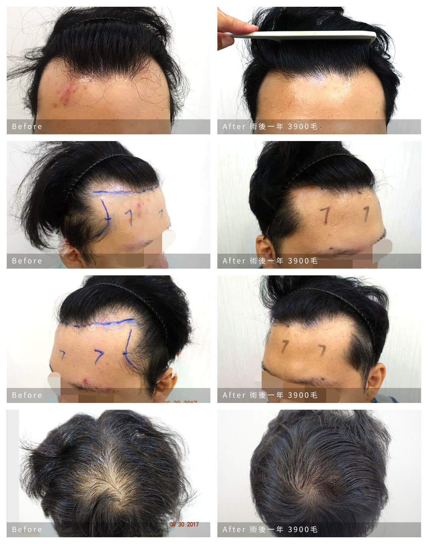 男髮際線對比圖