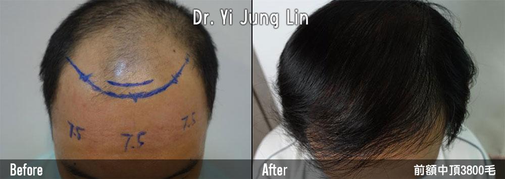 男植髮際線案例06