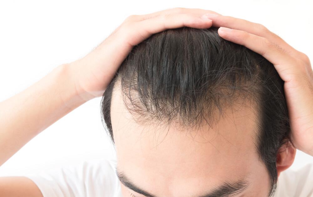 髮際線治療