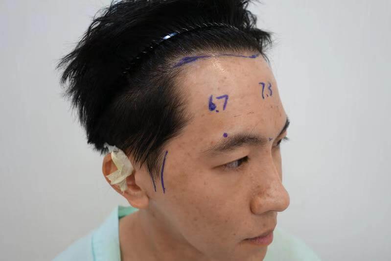 微量植髮術前