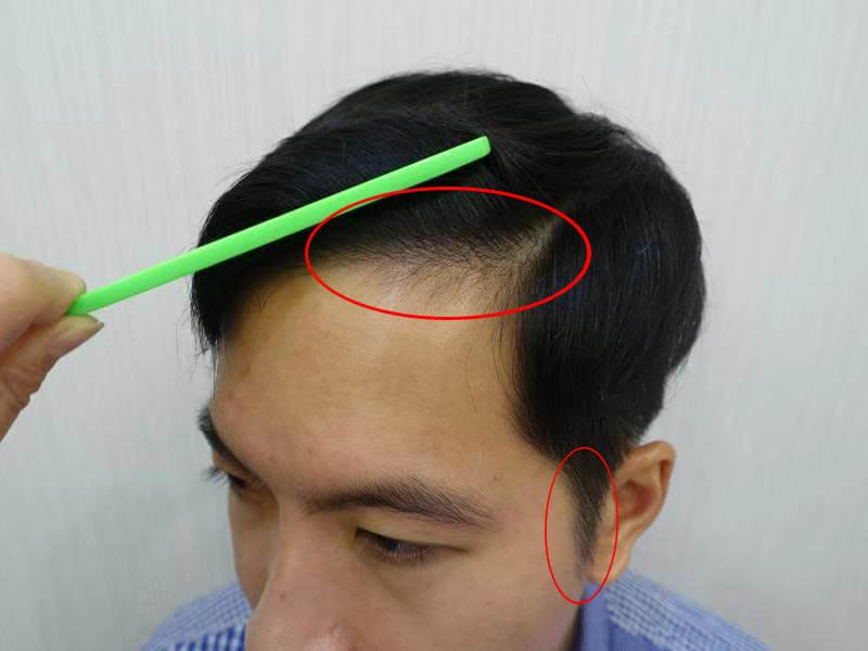 微量植髮術後