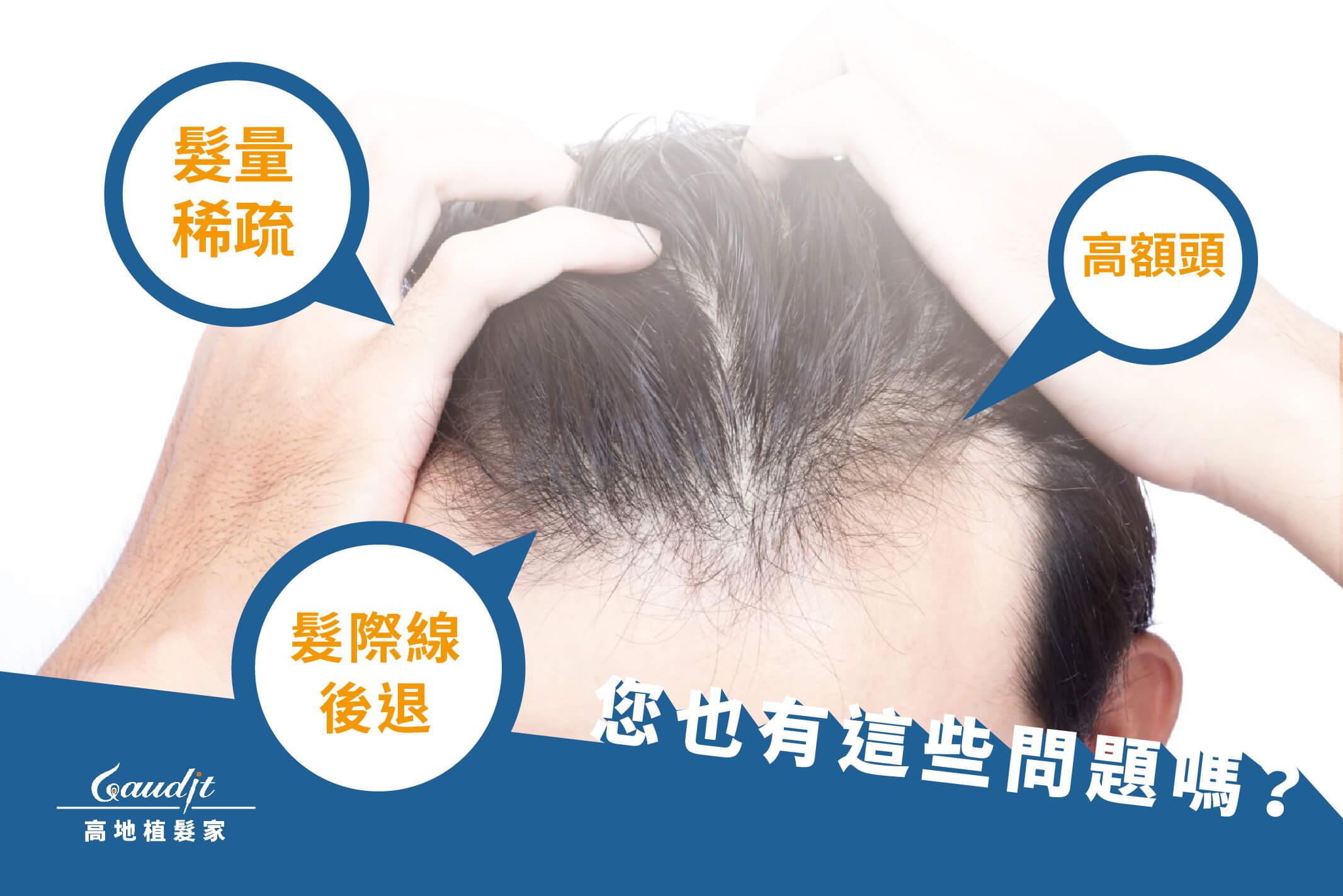 高地植髮家