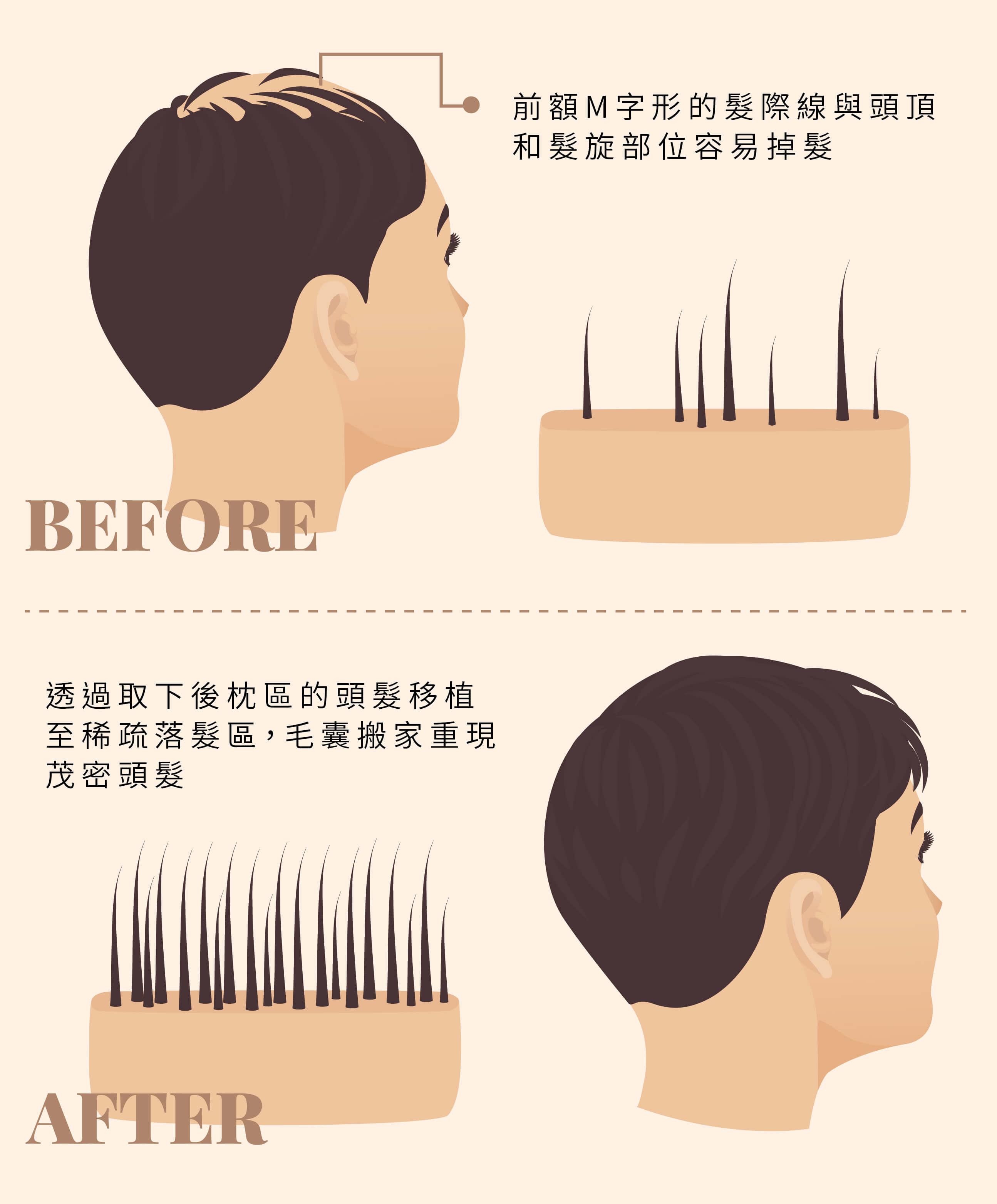 植髮手術原理