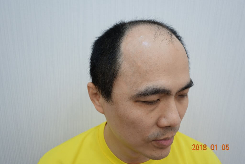 巨量植髮術前照片