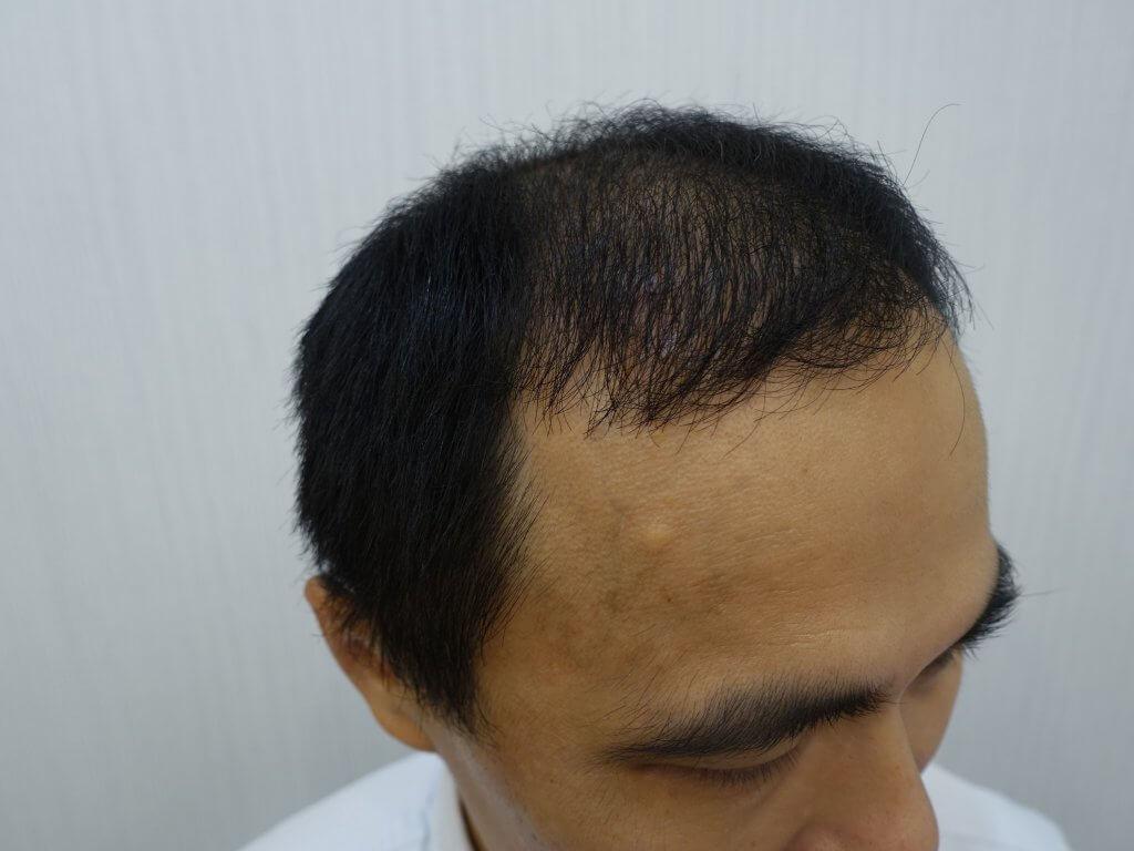 巨量植髮術後照片