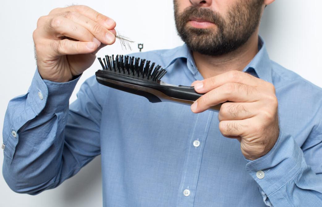 掉髮原因 前兆