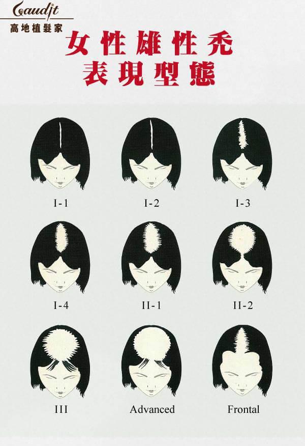 女性雄性禿