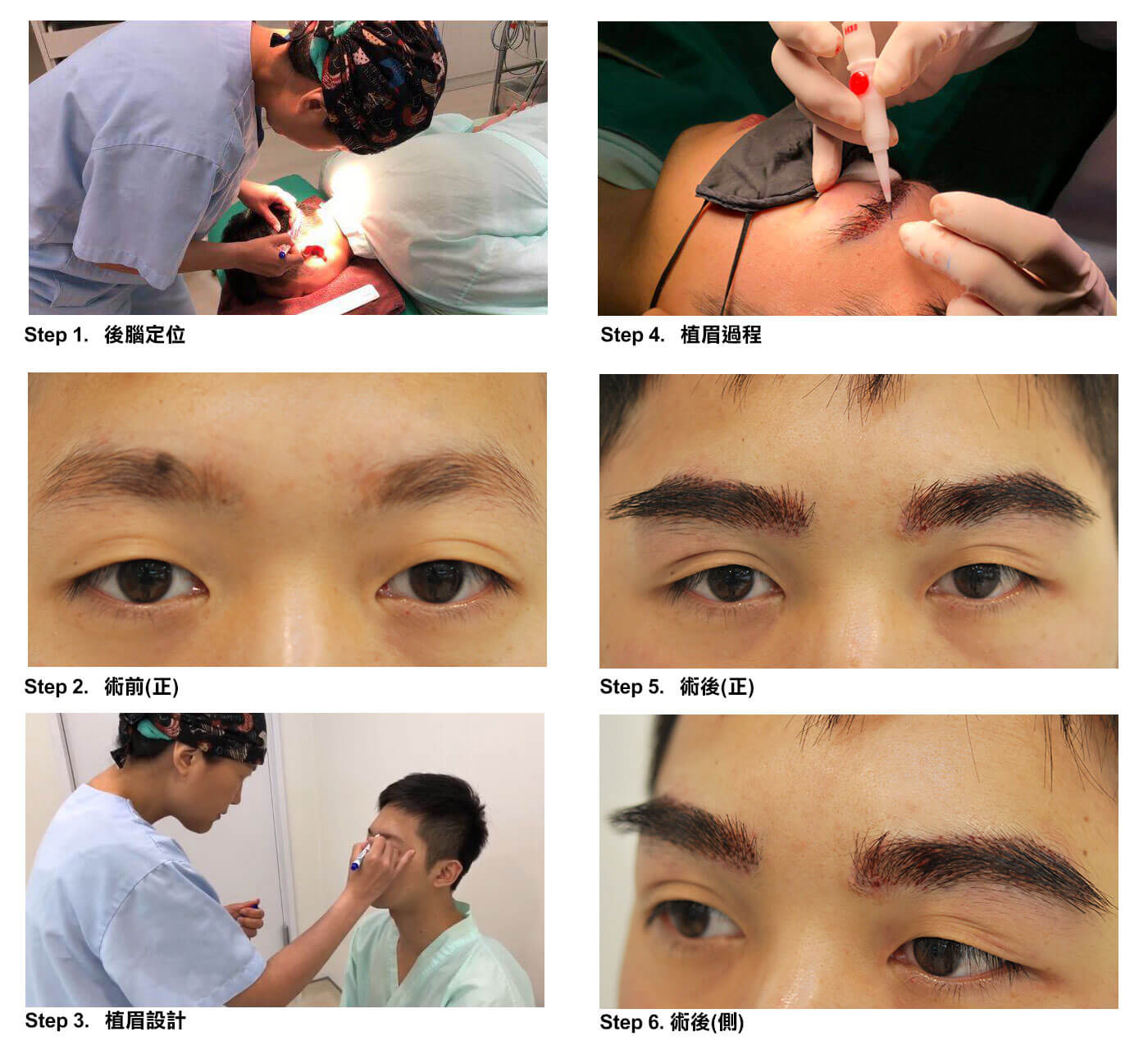 植眉毛手術流程