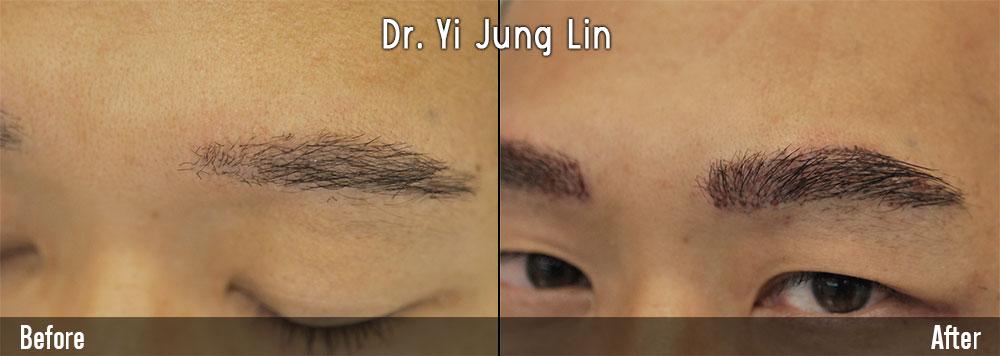 植眉毛案例2