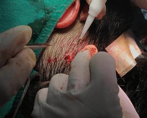 FUE手術流程3-種髮