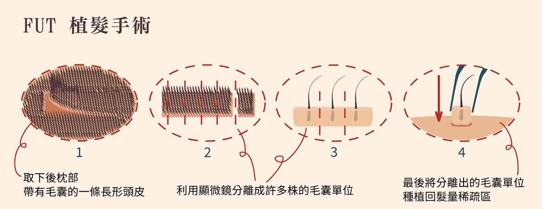 FUT植髮手術
