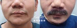 兔唇植鬍案例