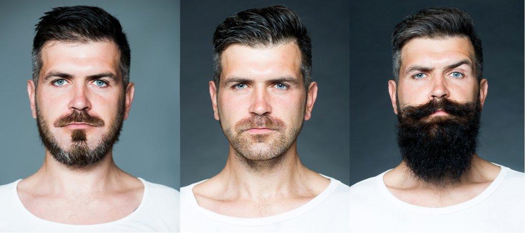 影響植鬍價錢因素