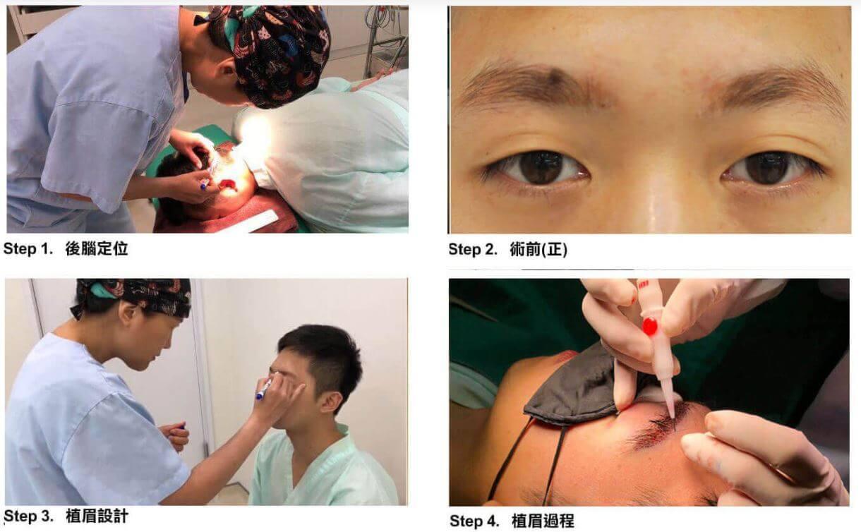 植眉術前評估