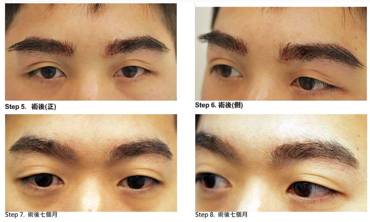 植眉術後對比