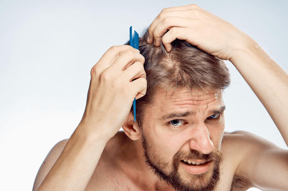 植髮後遺症