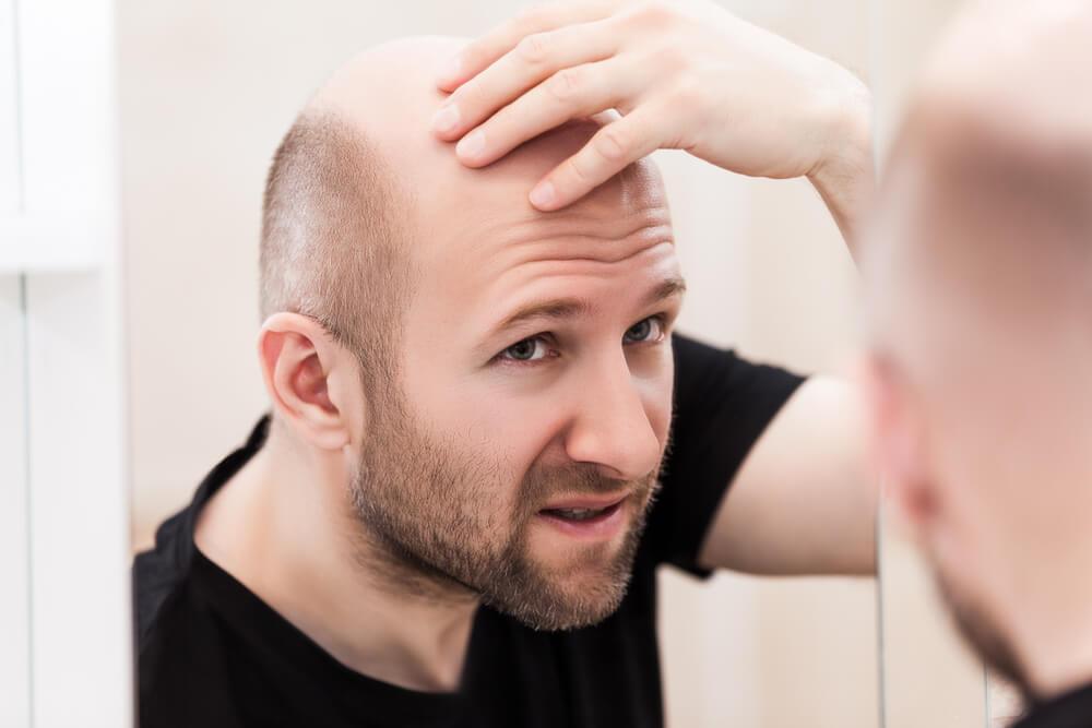 雄性禿地中海禿頭