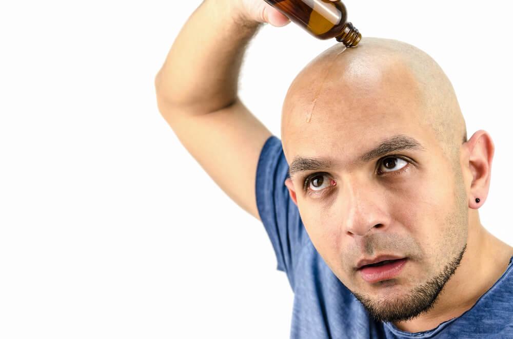地中海禿治療方式